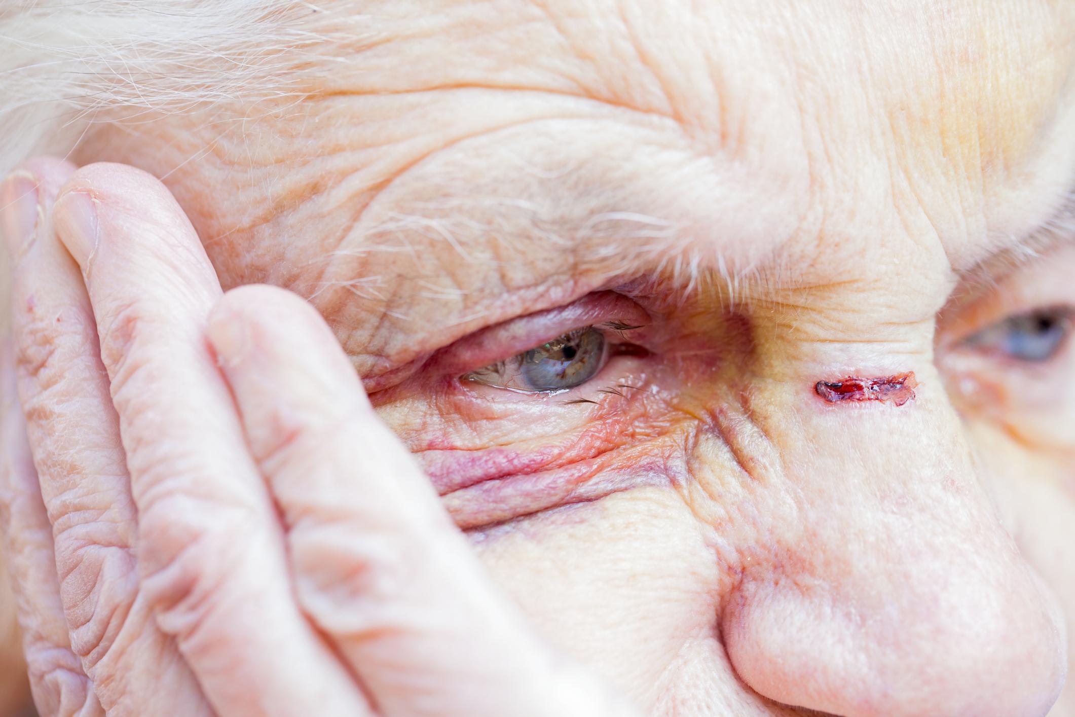 Photo of בני ברק: גבר בן 36 תקף וגרם לשברים בגופו של קשיש בן 72, כי העיר לו לאחר שהטיל את מימיו במדרגות בניין מגורים