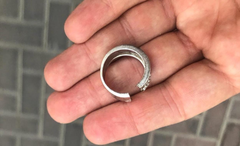 הטבעת שחולצה במבצע מיוחד. צילום: דוברות כיבוי