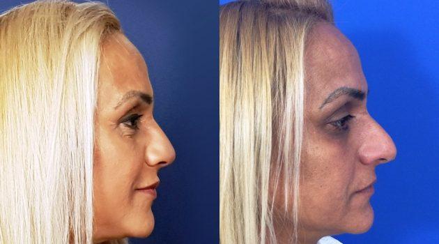 ניתוח אף. לפני ואחרי. צילום מרפאות מוסקונה
