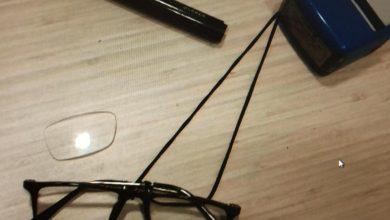 שבר את משקפי הרופא. צילום: דוברות המשטרה